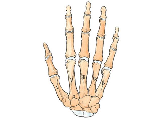 Imagen de Galeria de Pedrosa se fractura el segundo metacarpiano de la mano derecha